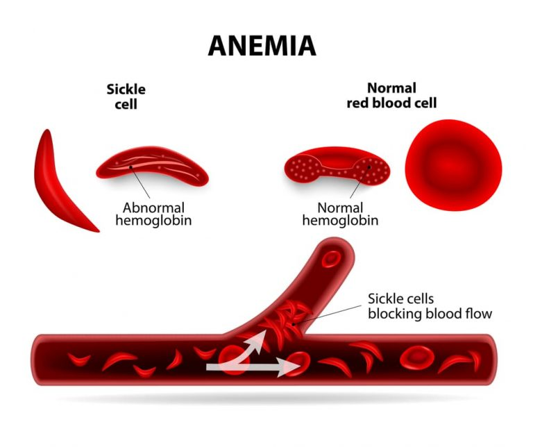How anemia works