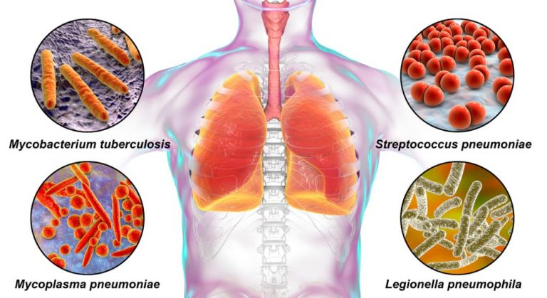 What is the California pneumonia presumption for safety and law enforcement officers